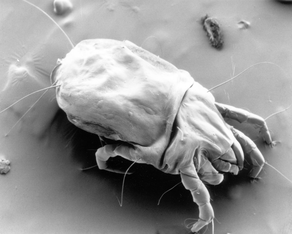 CSIRO_ScienceImage_11085_A_scanning_electron_micrograph_of_a_female_dust_mite