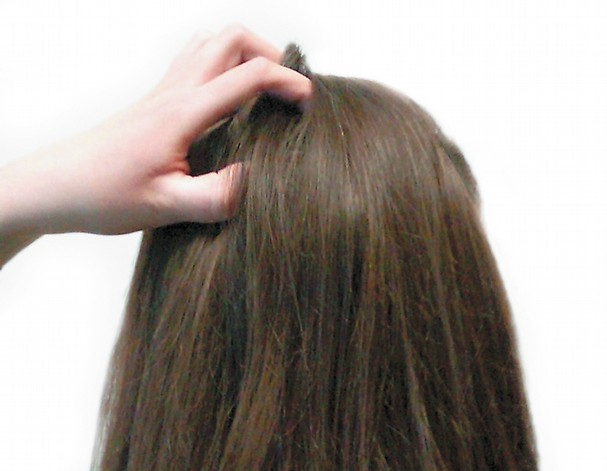 Lice-removal-Seattle